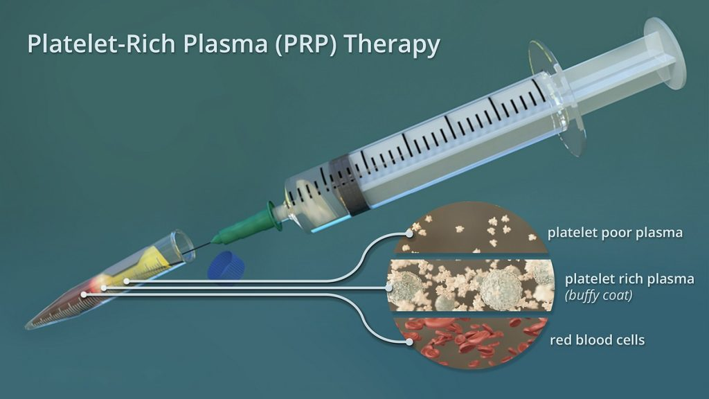 PRP for hip pain