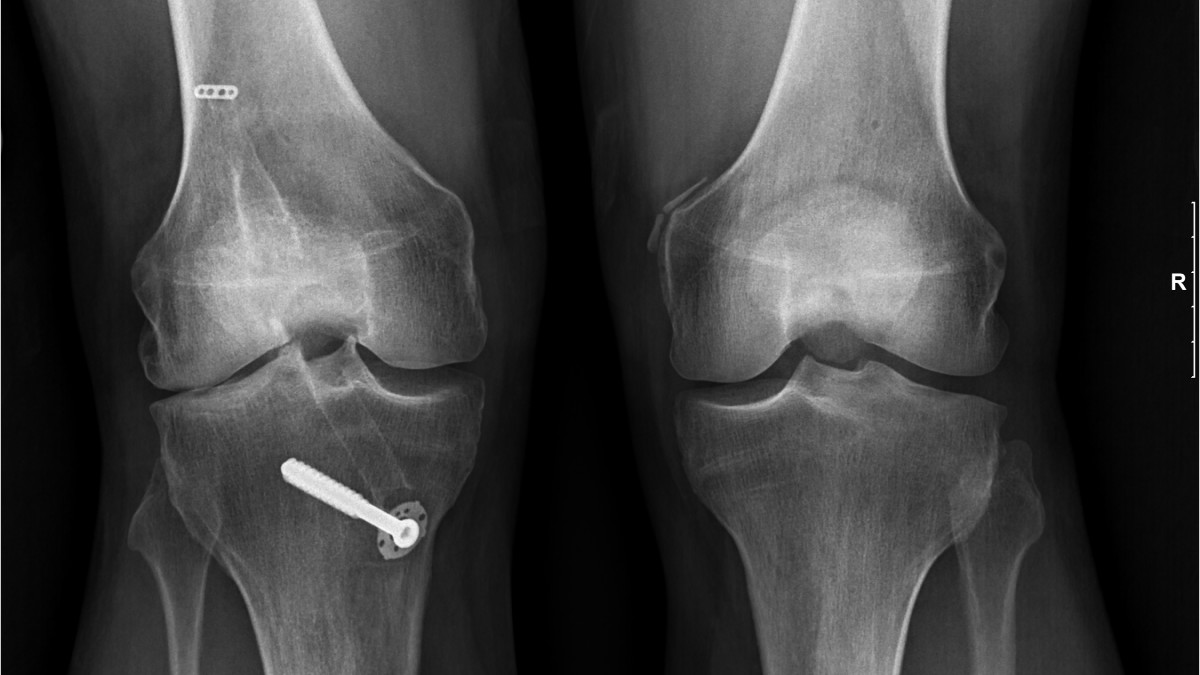 Stem cell therapy for knees