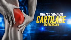 cartilage regeneration can be helped with stem cell therapy