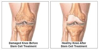 before and after stem cell for knee pain
