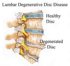 degenerated disc pain relief charlotte 1