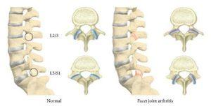 facet arthritis pain relief