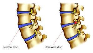 herniated disk treatment with stem cell therapy