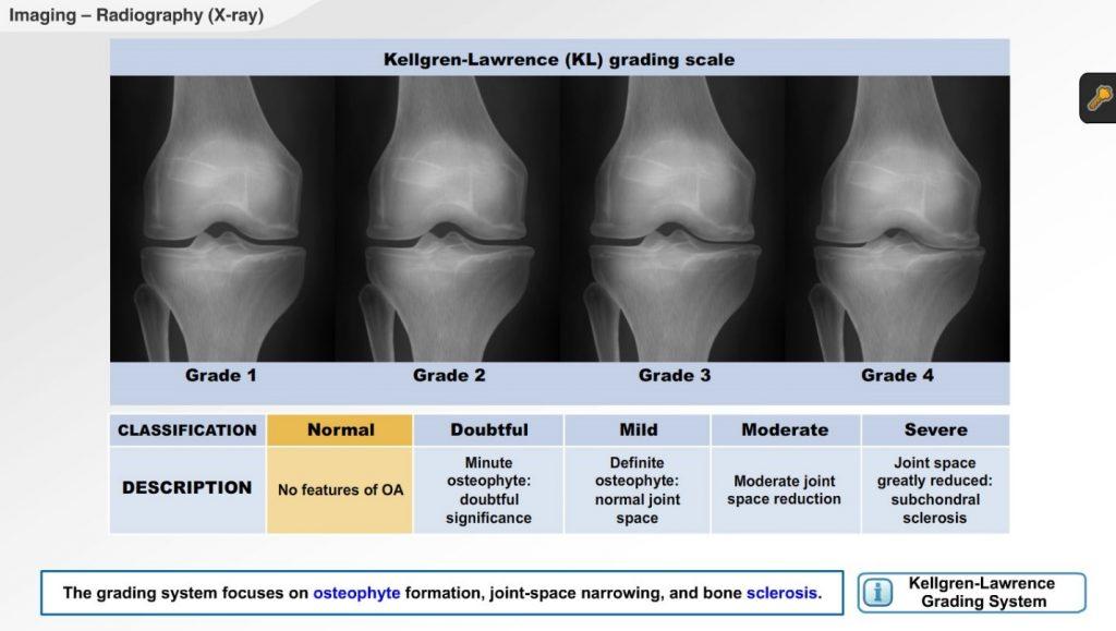 knee xray2