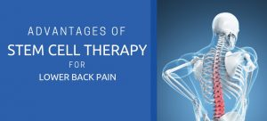 therapy for lower back pain using stem cells