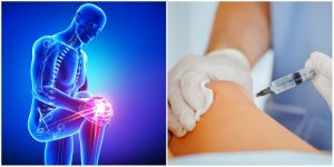 stem cell therapy or surgery for knee pain