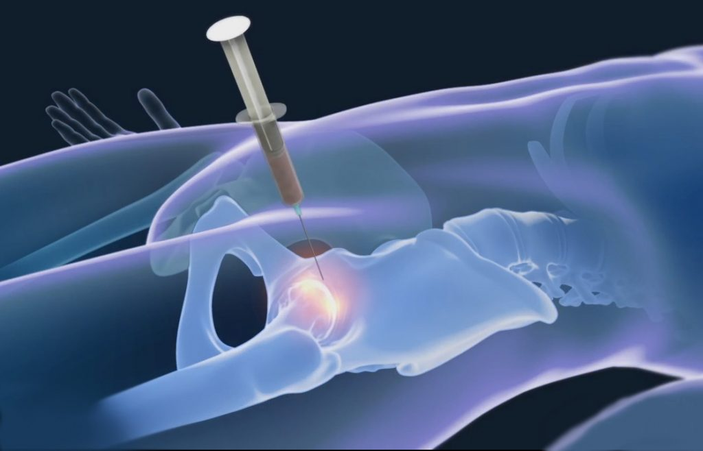 stem cell therapy for hip pain